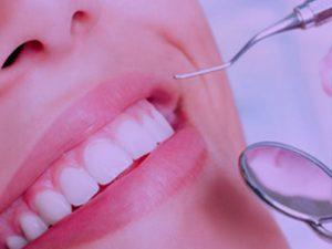coroane-dentare