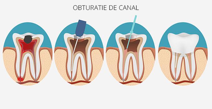 endodontic33