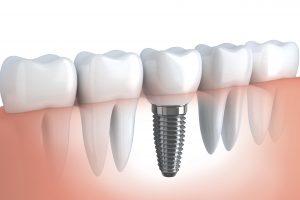 Implant dentar art dental new